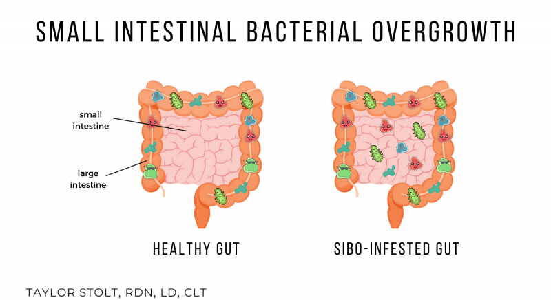 small intestinal bacterial overgrowth sibo