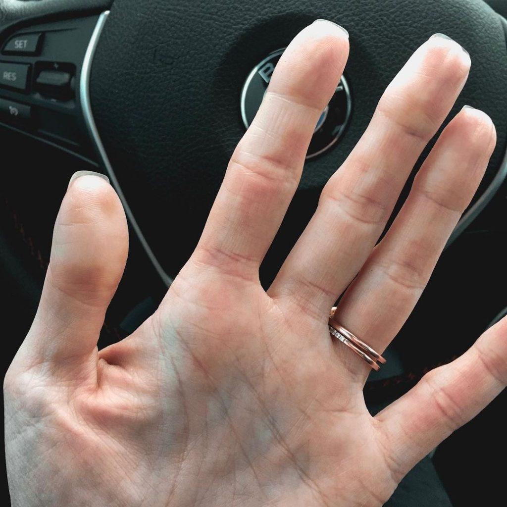 raynaud's on hands