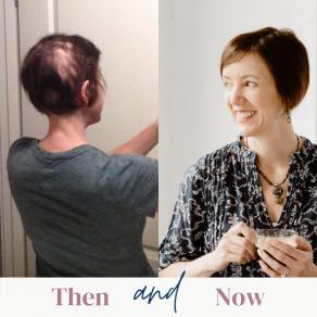 Alopecia Areata feature image